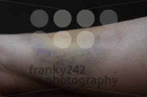 Bruised arm - franky242 photography