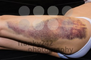 Bruise on wounded woman leg - franky242 photography