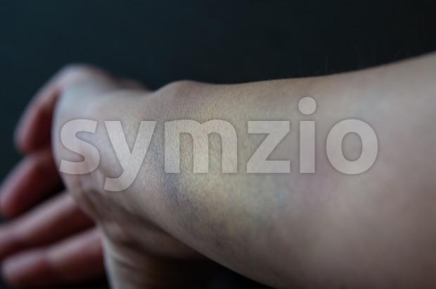 Bruised arm Stock Photo